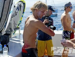 surfe patrick gudauskas machucado Fiji (Foto: Steve Robertson / ASP)