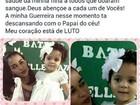 Morre gêmea de 2 anos que foi atropelada por trator em Rondônia