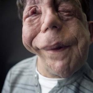 Adam Pearson foi diagnosticado com neurofibromatose quando tinha 5 anos. A doença faz com que tumores benignos cresçam em tecidos nervosos (Foto: Reprodução/Facebook)