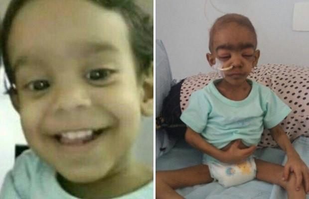 Família de Goiás luta para transferir bebê Davi Lima de Sousa de 2 anos e 5,3 kg para SP  (Foto: Reprodução/Facebook)