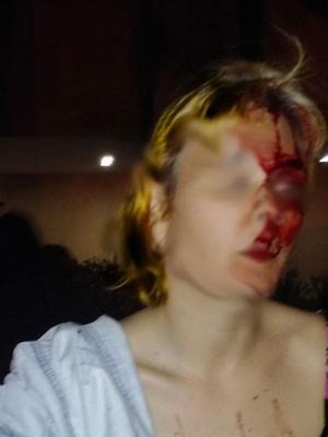 Feministas agressão Porto Alegre (Foto: Flifea/Reprodução)