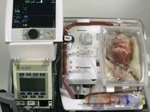 A máquina batizada de 'coração em caixa', que permitiu aos médicos manter o coração próprio para transplante  (Foto: BBC)