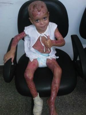 João Miguel passou por pelo menos três cirurgias no hospital (Foto: Marcos Vinícius/Arquivo Pessoal)