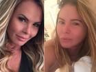 Cristina Mortágua mostra rosto após cirurgia para diminuir bochechas