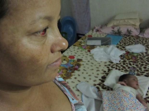 Angela Aparecida Gomes de Sousa e o bebê Bernardo; criança teve o braço fraturado durante o parto em Brasília (Foto: Alexandre Bastos/G1)