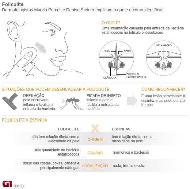 Bem Estar - Infográfico explica como identificar a foliculite (Foto: Arte/G1)