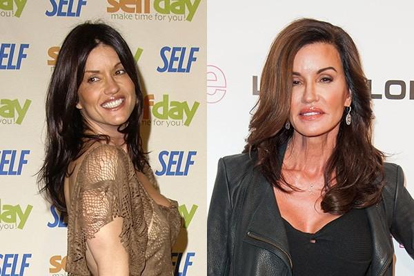 Quase não dá para reconhecer a modelo Janice Dickinson após todos esses anos de carreira. (Foto: Getty Images)