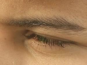 Jovem pode perder a visão (Foto: Reprodução / TV TEM)