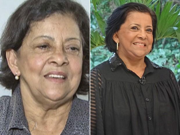 A aparência de Maria, aos 70 anos, antes e depois de um lifting (Foto: Mais Você / TV Globo)