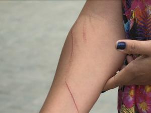 Mulher mostra as marcas de arranhões sofridas em confusão com técnica da Ame do José e Maria (Foto: Reprodução/ TV Grande Rio)