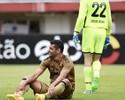 Lesões recentes ainda atrapalham Rogério e Diego Souza no Sport