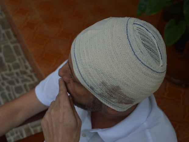 Rafael precisou fazer curativo na área da mordida (Foto: Luiz Souza/RBS TV)