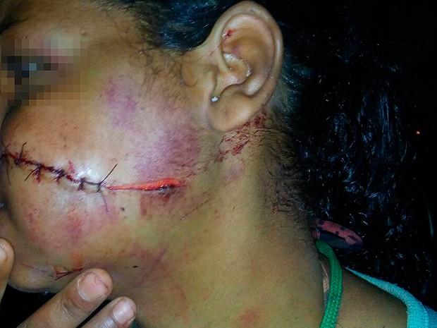 Mulher agredida na Bahia (Foto: Edivaldo Braga/ Blog Braga)