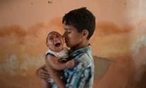 Brasil registra 3.893 casos de microcefalia (AP Photo/Felipe Dana)