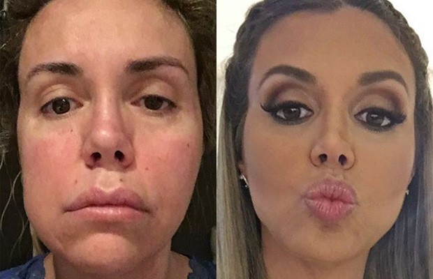 Renata Banhara na época da infecção, em 2016, e em novembro de 2017 (Foto: Reprodução/Instagram)