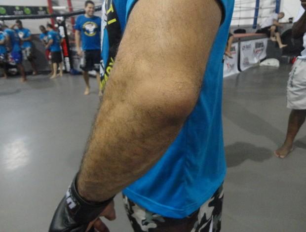 Cotovelo de Marcelo Guimarães lesionado (Foto: Richard Pinheiro)
