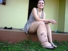 Jovem busca tratamento há 2 anos para doença rara que afeta perna