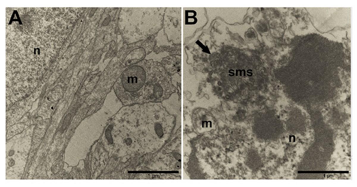 Experimento flagra zika atacando neurônios pela primeira vez