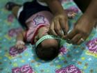 Pastoral pede doações para famílias de bebês com microcefalia em PE