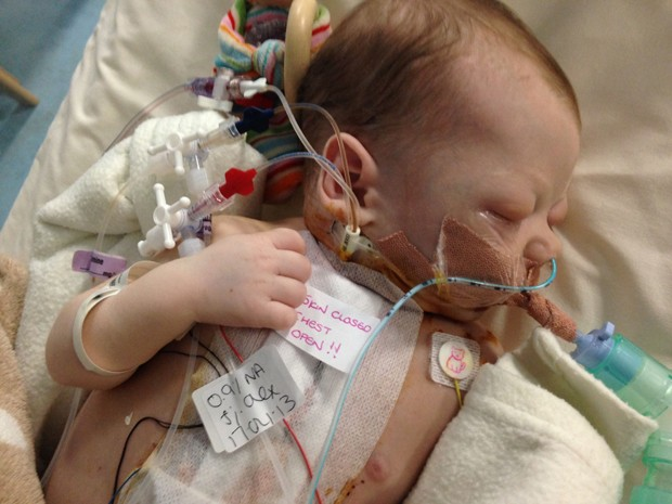 Bebê nasceu com defeito congênito no coração, reparado com tecido de coração de vaca (Foto: Caters News)