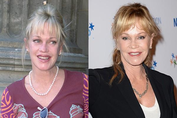 Há boatos de que Melanie Griffith, ex de Antonio Banderas, já fez procedimentos nos lábios e injeções de botox no rosto. (Foto: Getty Images)