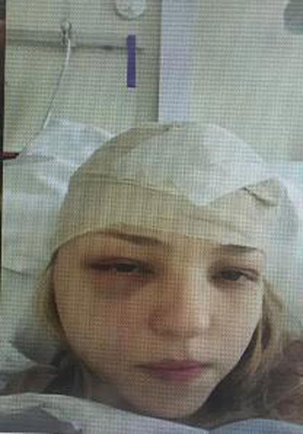 Gemma Nuttall durante fase do tratamento contra o câncer de ovário (Foto: Reprodução)