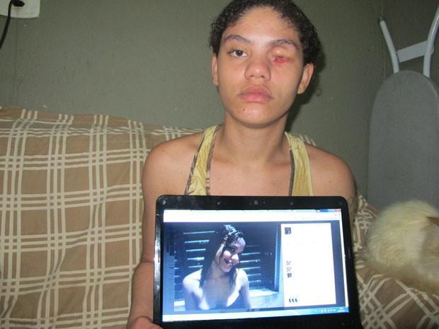 Jovem mostra foto de antes do incidente envolvendo a polícia (Foto: Paulo Toledo Piza/G1)