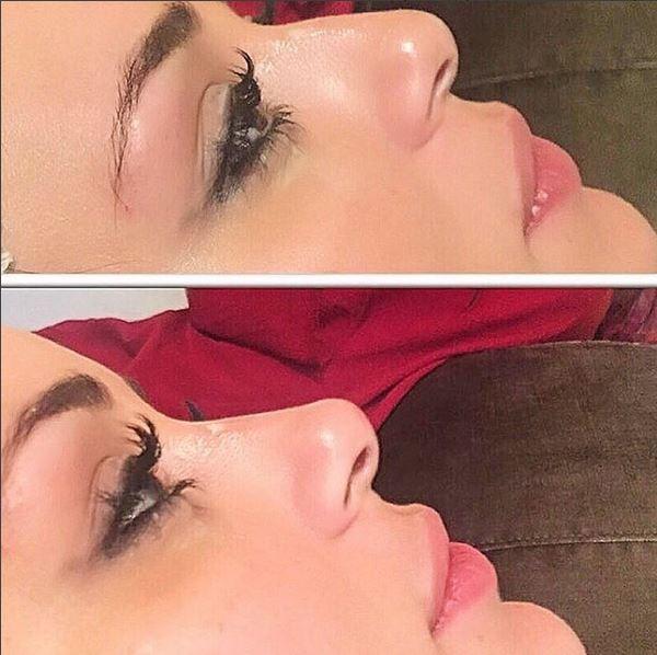 Ex-BBB Letícia Santiago mostra resultado de preenchimento no nariz e compara o antes e depois (Foto: Reprodução do Instagram)