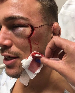 olho ferido Brennen Ward MMA (Foto: reprodução internet)