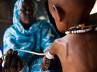 Estudo aponta que a má nutrição se estende pelo mundo