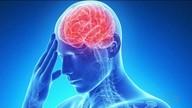 Neurologista explica como acontece um AVC e os cuidados necessários para preveni-lo