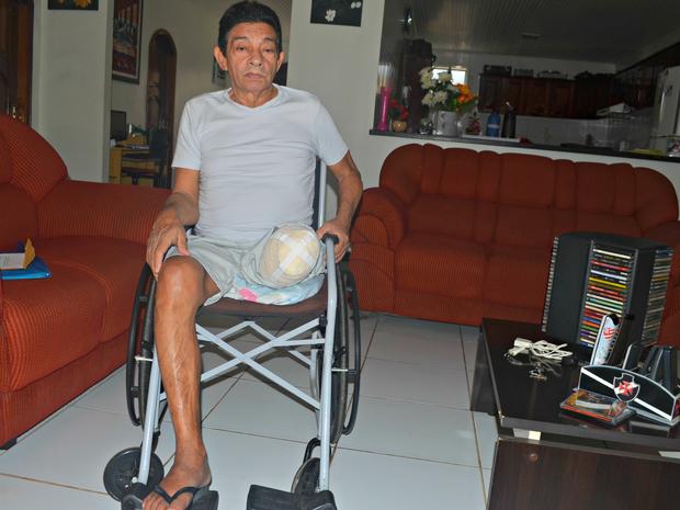 Pelegrino Thomaz amputou a perna há pouco mais de três meses  (Foto: Tácita Muniz/G1)