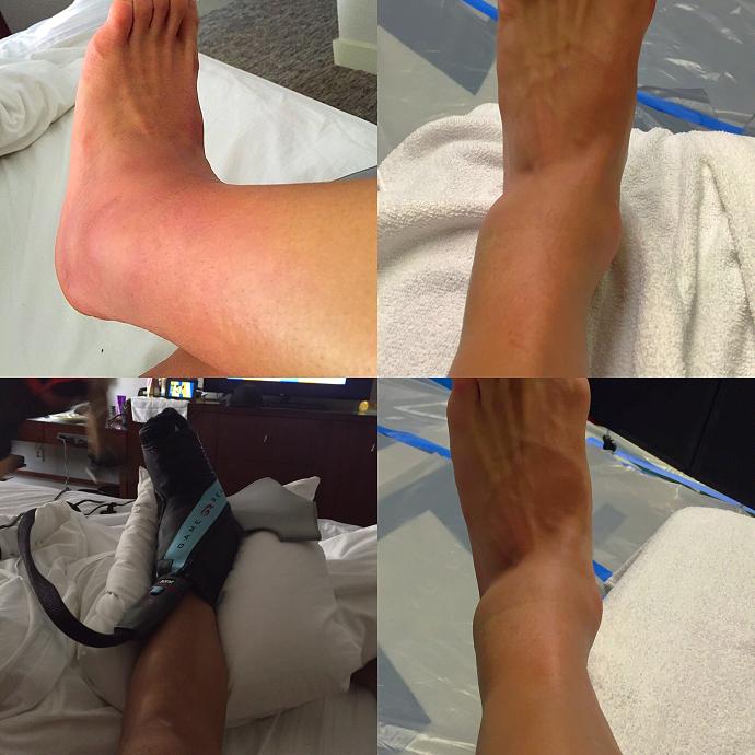 Alexis Sánchez lesão tornozelo