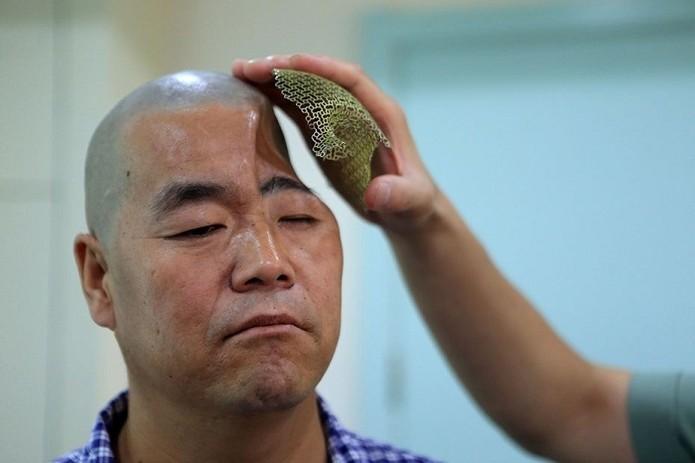 Homem tem crânio reconstruído graças a malha de metal criada por impressora 3D (Foto: Reprodução/China Daily)