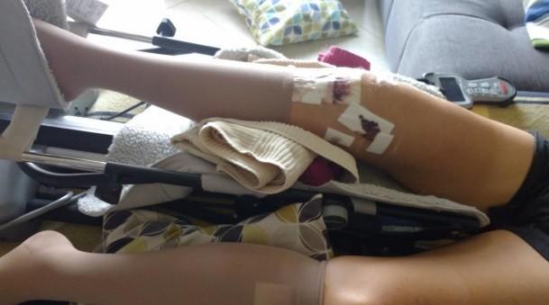 A perna de Ina após a cirurgia