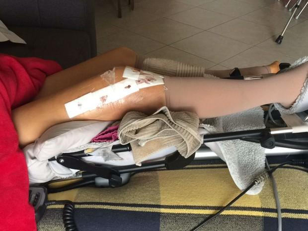 Na cirurgia no joelho, foram colocados três pinos na perna de Ina. (Foto: Ina Østrøm/Arquivo Pessoal)
