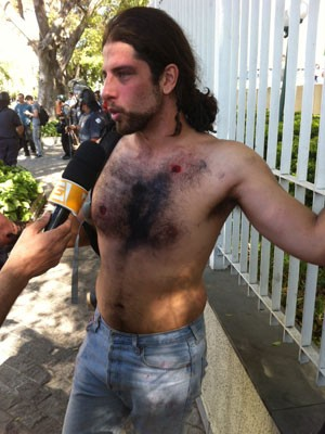 Manifestante que se identificou como Rafael foi ferido por balas de borracha (Foto: Gustavo Petró/G1)