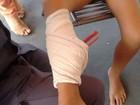Peça de balanço perfura perna de criança em Montes Claros