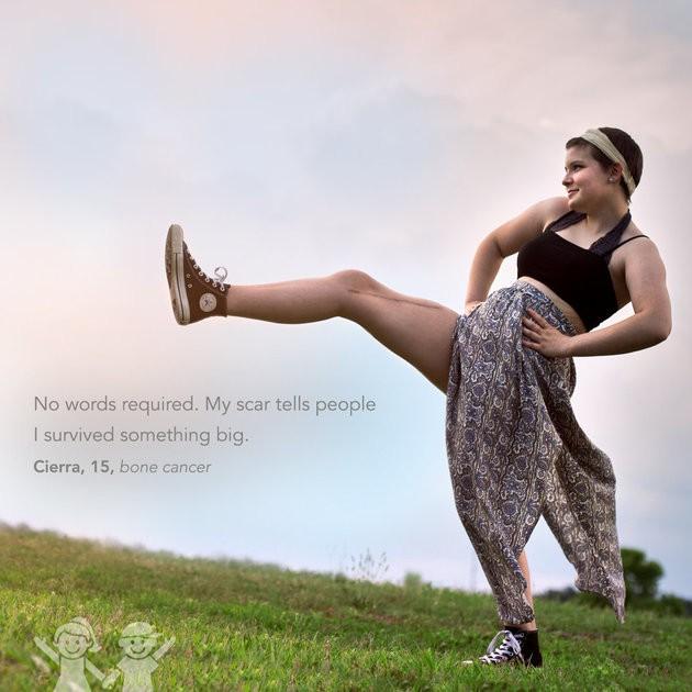 """""""Não é preciso palavras. Minha cicatrizes contam para as pessoas que sobrevive a algo grande"""". Cierra, 15 anos, câncer ósseo (Foto: Kate T. Parker/CHOA)"""