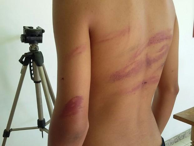 Menino de 12 anos foi agredido por grupo ao deixar escola (Foto: Bebeto Karolla/Folha de Búzios)