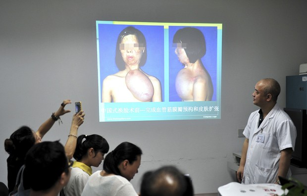 Médicos de um hospital em Fuzhou, na província de Fujian, na China, apresentam procedimento em que retiraram pele da perna de paciente para reconstituir um rosto em seu peito; pele foi transplantada, na segunda-feira, em seu rosto. (Foto: Reuters/China Daily)