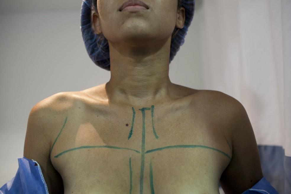 Preparação para cirurgia mamária (Foto:  AP Photo/Ariana Cubillos)