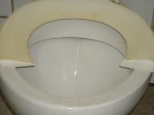 Assento do vaso sanitário quebrado (Foto: Simão Bernardo Sabadin da Costa/Arquivo Pessoal)
