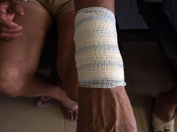 Mulher de 38 anos levou facada no braço esquerdo (Foto: Emily Costa/ G1 RR)