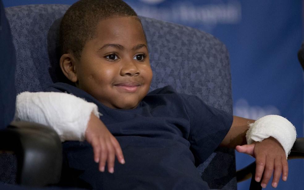 Zion Harvey, de apenas 8 anos, sorri em coletiva de imprensa com as mãos enfaixadas. Cirurgiões da Filadélfia, nos EUA, fizeram nele um transplante duplo de mãos. Acredita-se que Zion seja o paciente mais jovem a se submeter ao procedimento (Foto: Matt Rourke/AP)