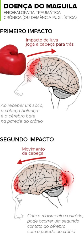 info doença do maguila (Foto: arte esporte)