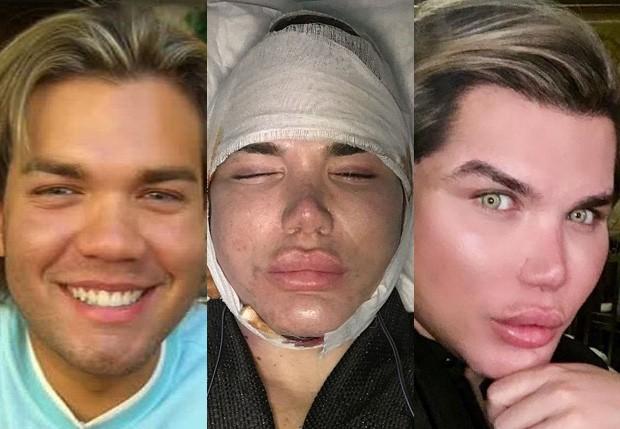 Rodrigo Alves, o Ken Humano, antes das cirurgias e após sua 50ª intervenção (Foto: Reprodução)