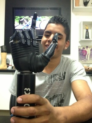 David testa a mão biônica, que deve receber em 30 dias (Foto: Luana Eid / G1)