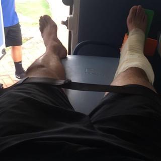 Danilo com a perna direita imobilizada (Foto: Arquivo pessoal)