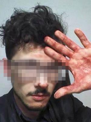 Jovem diz que levou cinco pontos na nuca; imagem foi manipulada a pedido da vítima para preservar identidade. (Foto: Arquivo pessoal)
